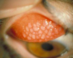 Congiuntivite allergica-Infermiere di territorio-ECM